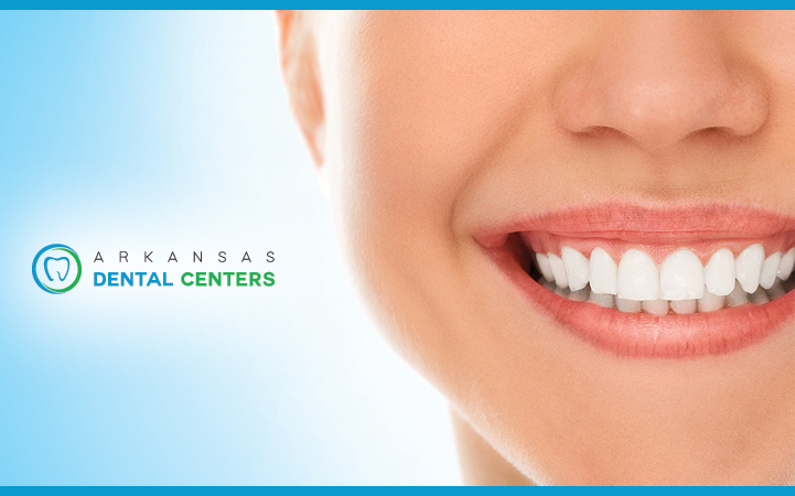 ARKANSAS DENTAL CENTERS - BENTON